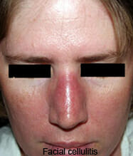 Treatment of facial cellulitis theme
