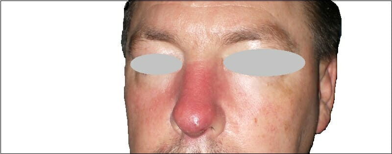 nasal cellulitis infection