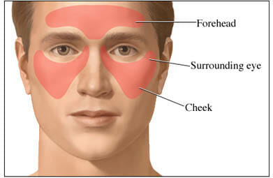 Nasal cellulitis