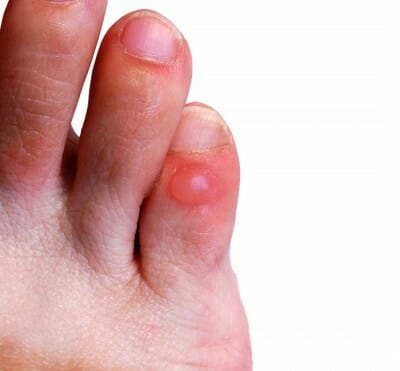 blister on little toe of the right leg