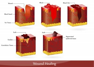 the process of wound healing