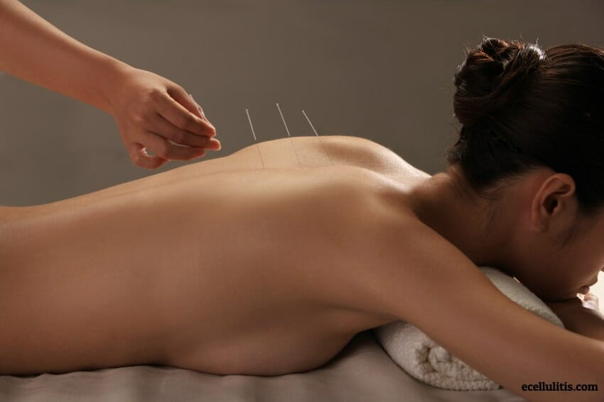 Acupuncture for Cellulitis