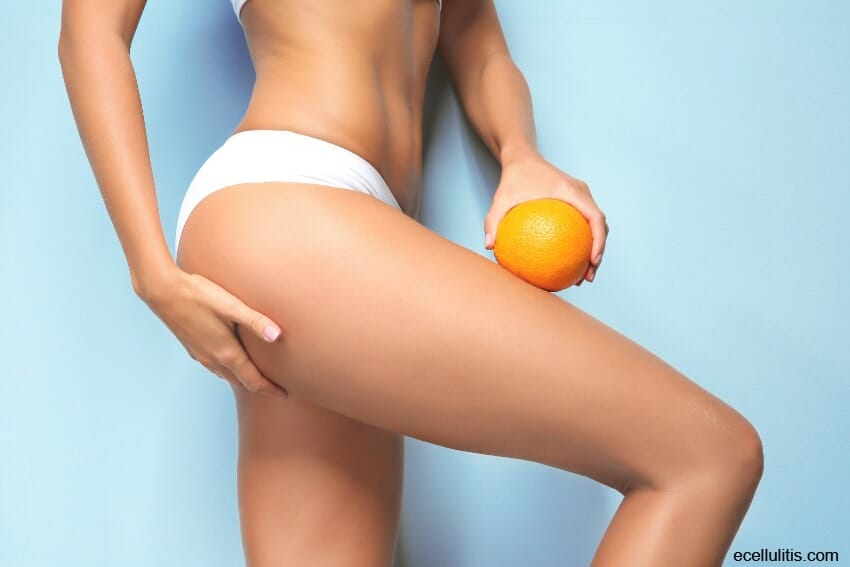 cellulite - difference between cellulite and cellulitis