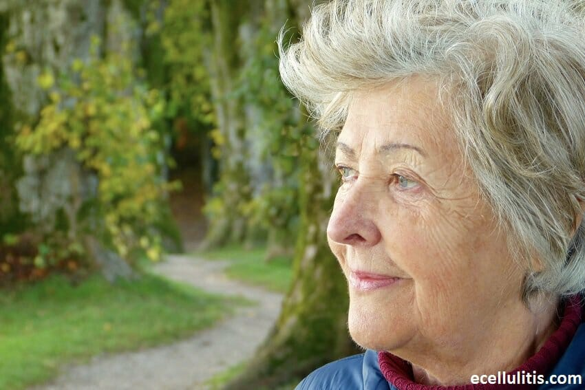Cellulitis Affecting Older People
