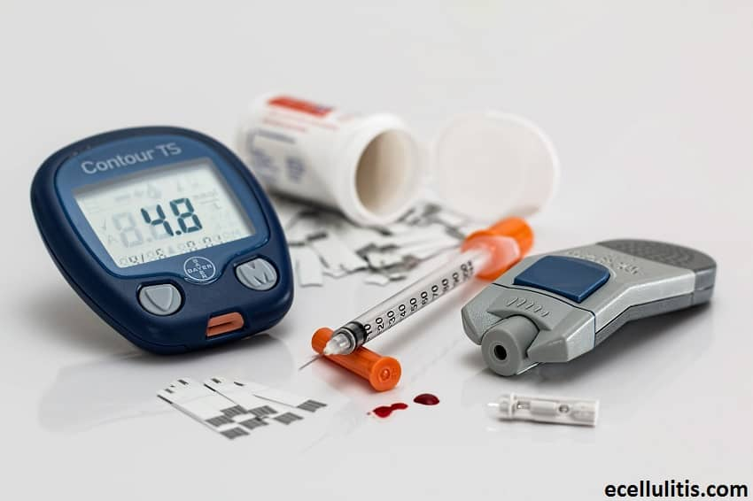Diabetes as the Cause of Cellulitis