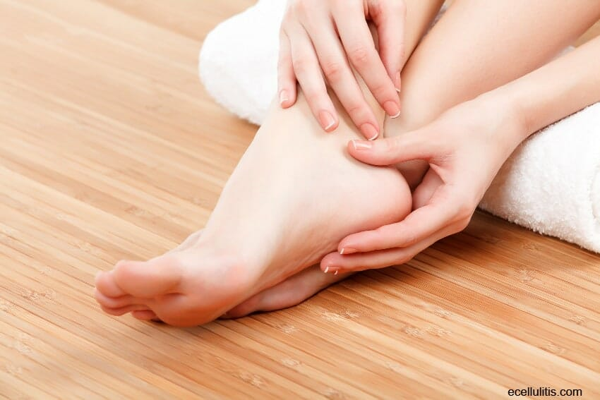 Foot Cellulitis – Things You Should Know