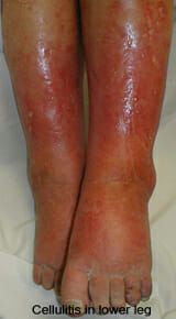 lower leg cellulitis