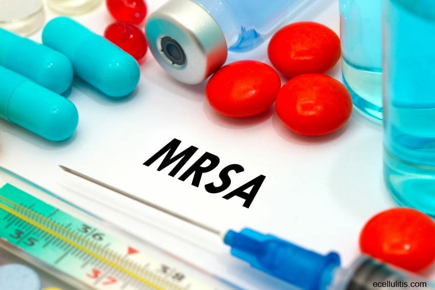 what is MRSA