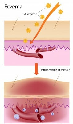 eczema illustration