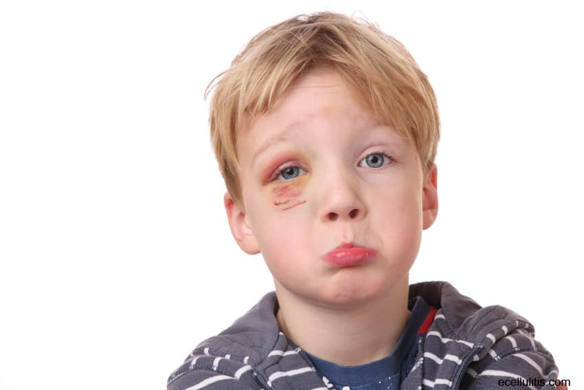 Cellulitis In Children