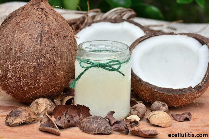 Alternative Treatments for Cellulitis - Coconut Oil