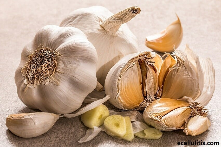 Alternative Treatments for Cellulitis - Garlic