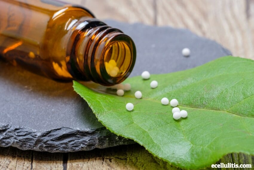 Alternative Treatments for Cellulitis - Homeopathy