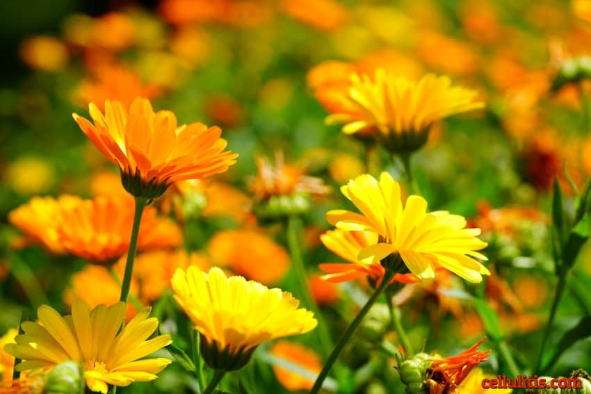Alternative Treatments for Cellulitis - calendula -herbs