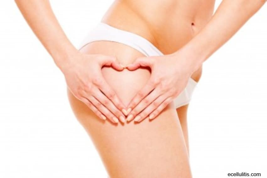 13 Things You Need To Know About Cellulite