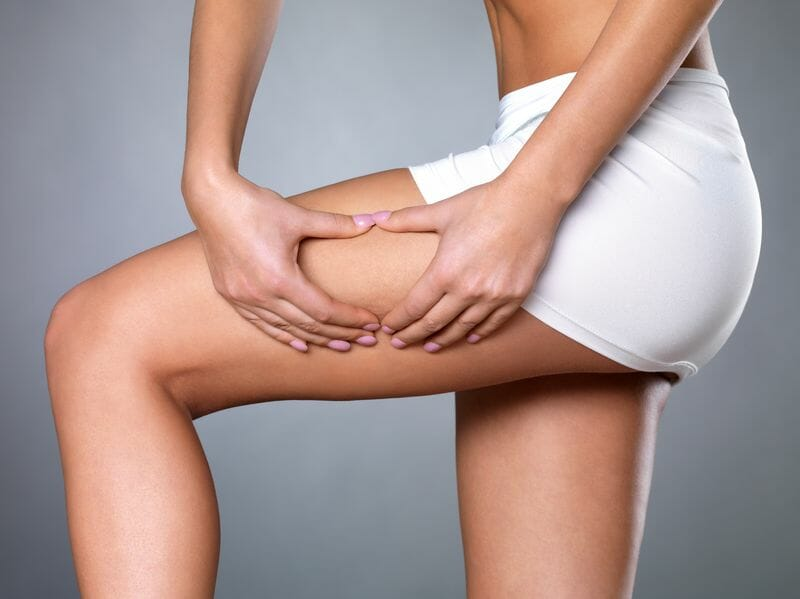 Today's Big Q: How To Get Rid Of With Cellulite (FAST)?