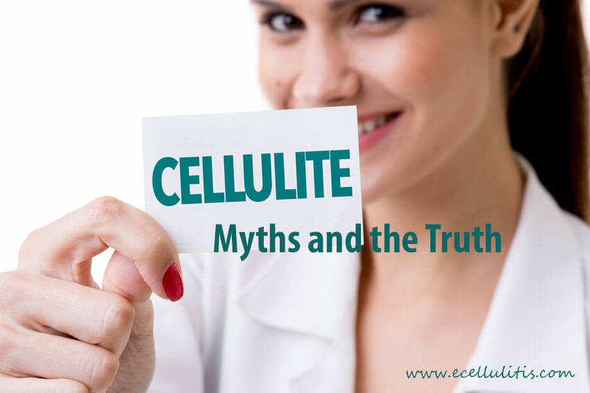 Cellulite myths and the truth