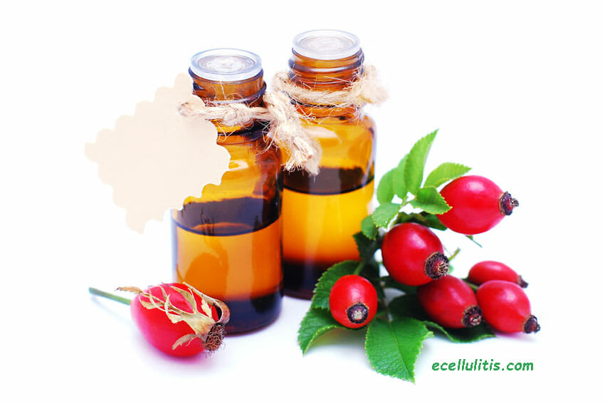 Rosehip oil - treat scars naturally