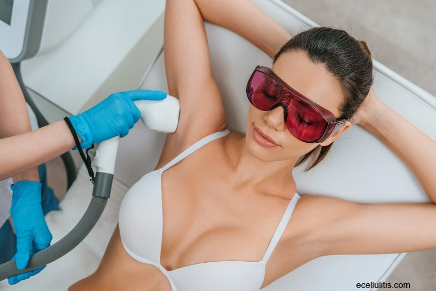 What Are the Laser Hair Removal Pros and Cons