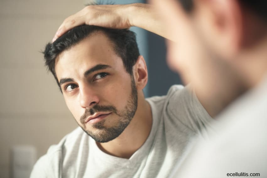 tips for preventing hair loss