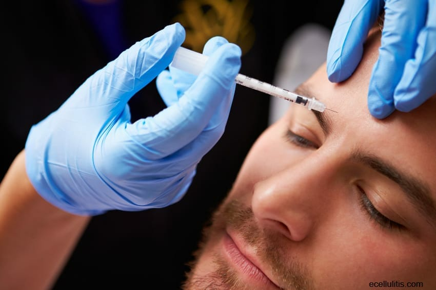 botox treatment reduces depression