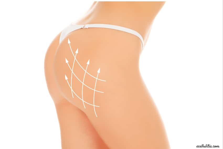 brazilian butt lift - 12 questions to ask your plastic surgeon
