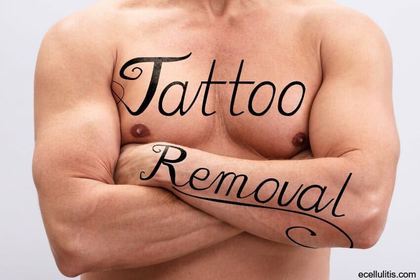 laser tattoo removal treatment details
